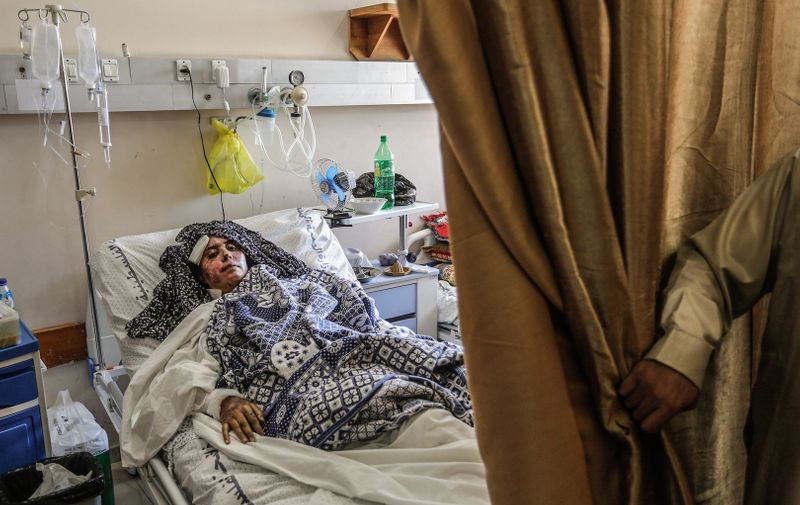 A Palestinian woman who was wounded in Israeli airstrikes, lies in Al-Shifa hospital in Gaza City. In response to days of violent confrontations between Israeli security forces and Palestinians in Jerusalem, various Palestinian militants' factions in Gaza launched rocket attacks since 10 May that killed at least 12 Israelis to date.  The Palestinian health ministry said that at least 213 Palestinians, including 61 children, were killed in the retaliatory Israeli airstrikes. Israeli-Palestinian violence in  Gaza, Palestine - 18 May 2021,Image: 611780524, License: Rights-managed, Restrictions: , Model Release: no, Credit line: Profimedia
