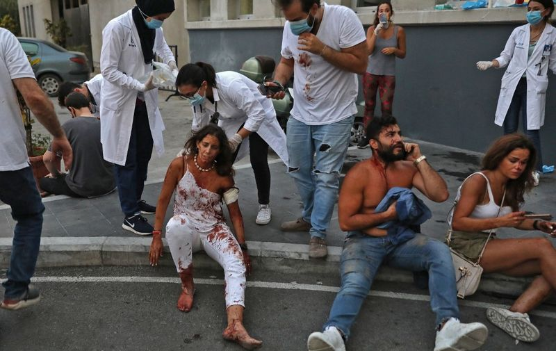 EDITORS NOTE: Graphic content / Wounded people are pictured outside a hospital following an explosion in the Lebanese capital Beirut on August 4, 2020. - Two huge explosion rocked the Lebanese capital Beirut, wounding dozens of people, shaking buildings and sending huge plumes of smoke billowing into the sky. Lebanese media carried images of people trapped under rubble, some bloodied, after the massive explosions, the cause of which was not immediately known. (Photo by IBRAHIM AMRO / AFP)
