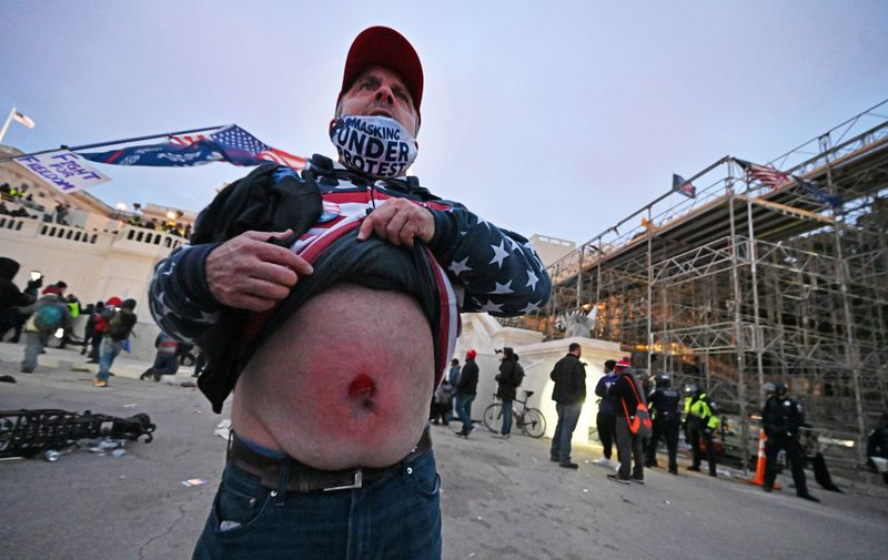 Washington, DC - 010620  A man shows where he was allegedly shot by US Capitol Police officers after they were trying to get control of the buidling on a day where thousands of pro- Trump supporters rallied on January 6, 2021 in the District of Columbia (DC) outside the US State Capitol as the US Senate certificated the Electoral College vote ratifying Joe Biden as the president of the US.  (Essdras M Suarez/ ZUMA Press)