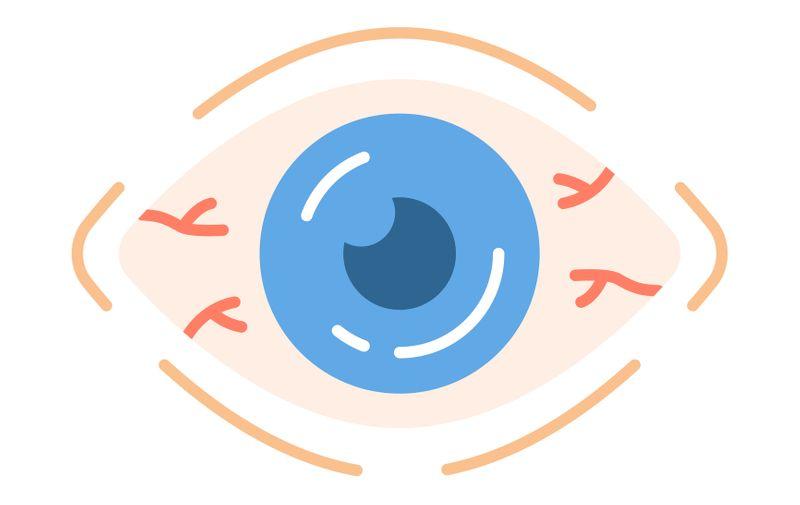 Allergic conjunctivitis flat design long shadow color icon. Seasonal spring, summer pollen allergy symptom. Bacterial, viral infection. Eye irritation, redness. Vector silhouette illustration